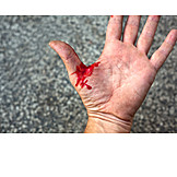 Hand, Wound, Bloody
