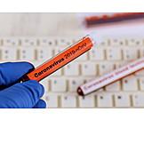 Laboratory Examination, Diagnosis, Blood Test, Corona Virus