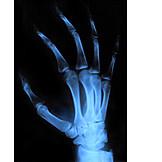 Hand, X Ray
